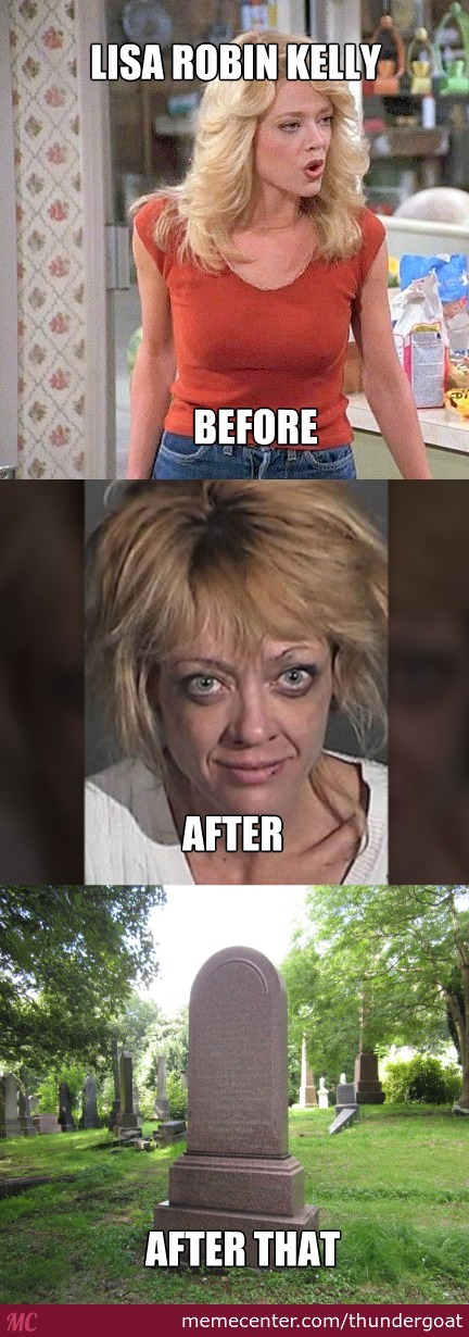 70S Show Actress - Drugs Before And After