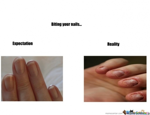 Biting your nails