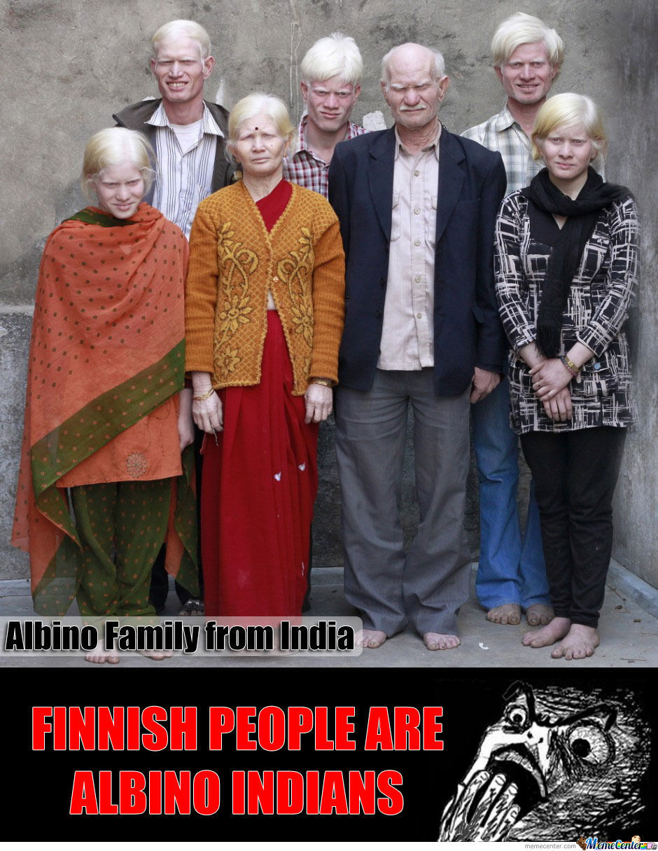 Albino Family In India