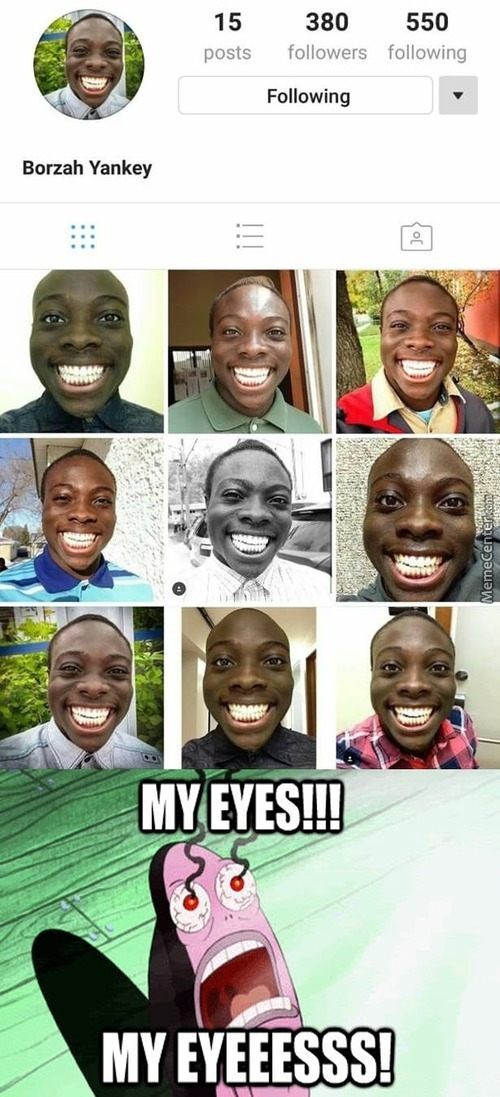 His Teeth Are More Brighter Than My Future