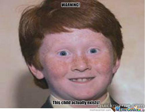 Weird Ginger Kid Really Exists