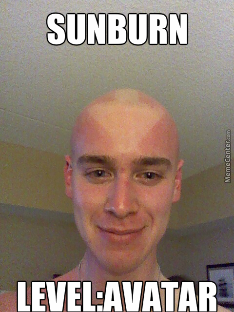 With This Sunburn Comes Great Power