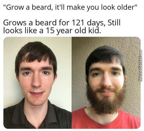 But Now He Has A Beard