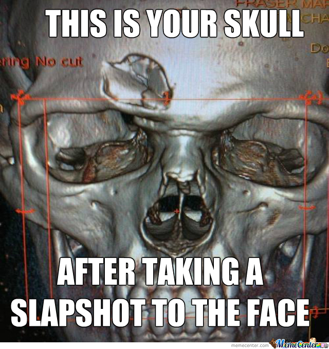 cat scan of a hockey player amp 039 s skull after a puck to the face_o_2267661 cat scan of a hockey player's skull after a puck to the face by