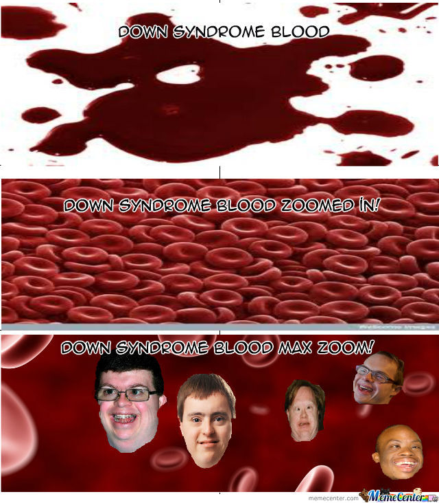 Down Syndrome Blood Zoomed In By Recyclebin Meme Center