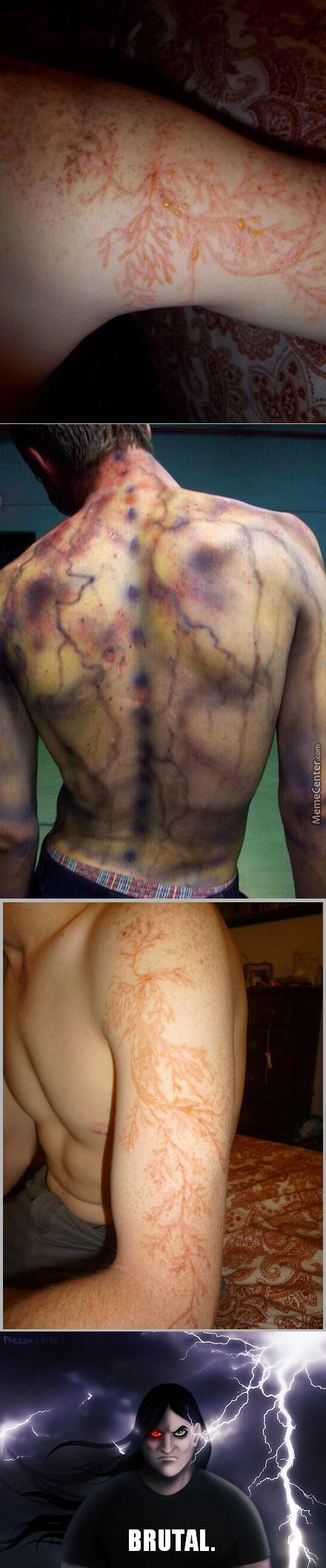 Gruesomely Beautiful Lightning Strike Scarring