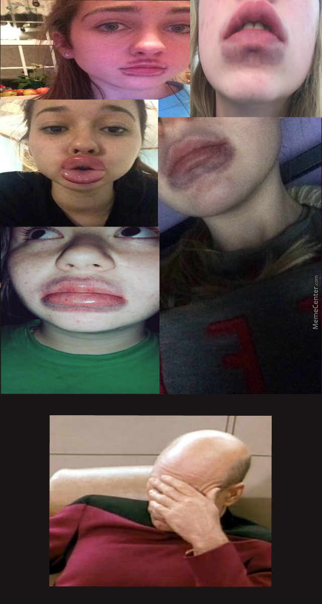 Kylie Jenner Lip Challenge, The Stupid Is Strong In This One