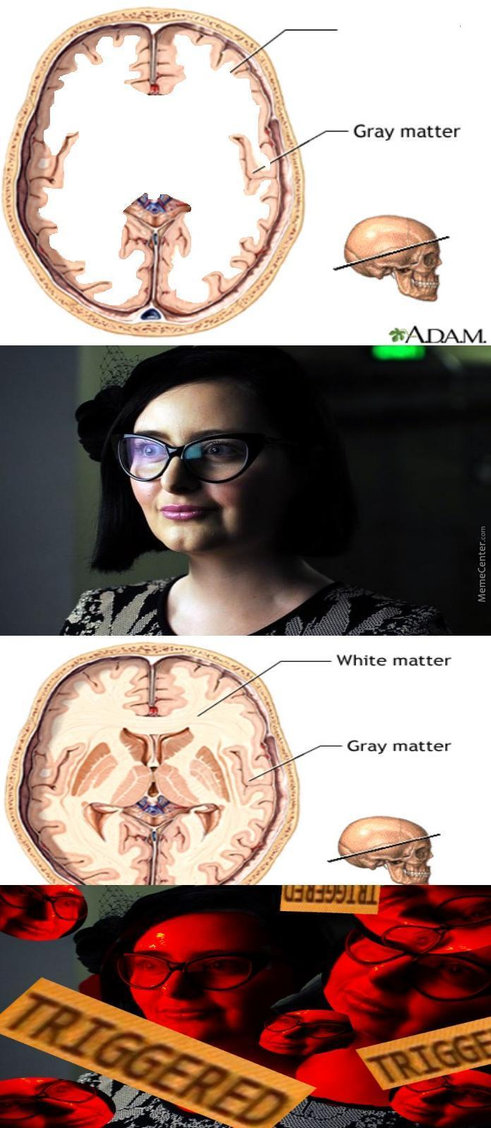 Only Triggered Because She Has No Brain Matter