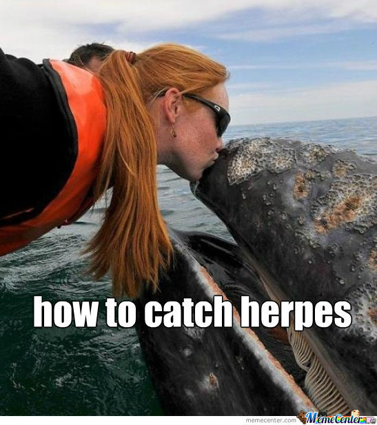 Poor Whale Catching Herpes From Ginger