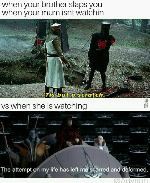 Tis But A Flesh Wound(I Mean Owwwieee)