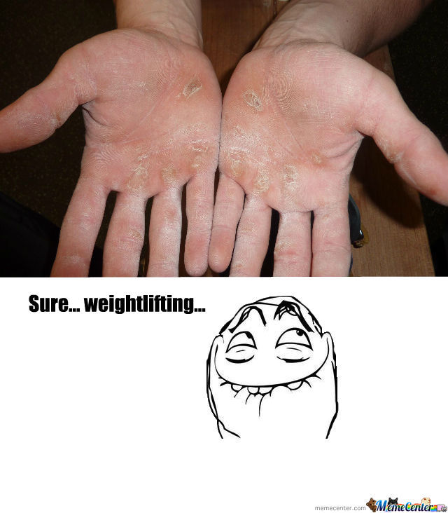 Weightlifting Calluses